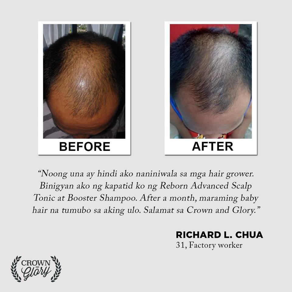 hair grower testimonial